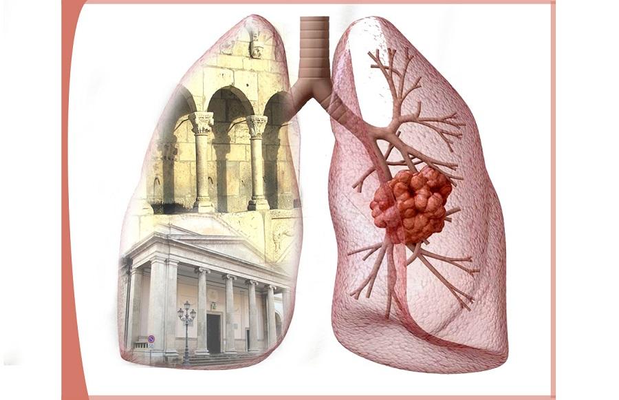 Isernia: L'Ordine dei Medici propone un convegno sull'approccio da seguire per il paziente affetto da carcinoma polmonare.